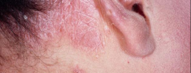 Darsonval au psoriasis de la partie hispide de la tête les rappels