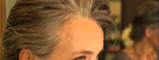 Maladie cheveux gris jeune