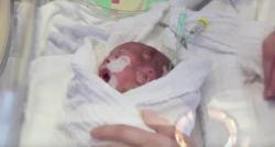 Décès de deux prématurés dans le service de réanimation néonatale de la maternité du CHRU de Nancy