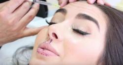 Une Rémoise attaque un fabriquant de Botox après avoir été prise de migraines, vomissements et de problèmes neuromusculaires