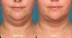 Un nouveau traitement pour éliminer la graisse du double-menton, sans opération, baptisé Kybella disponible aux USA